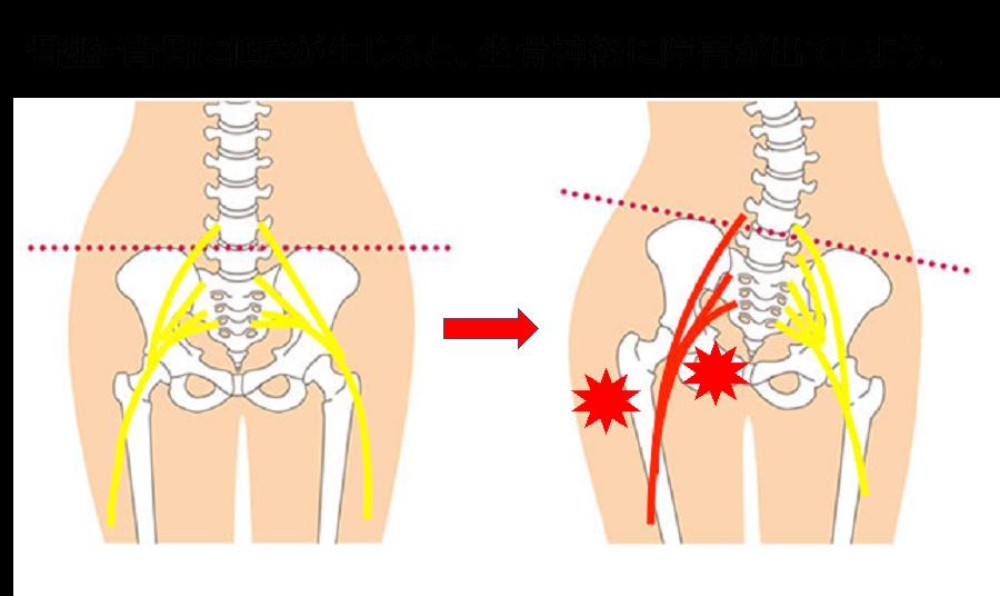 坐骨神経痛図